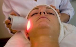 Лечение неврита лазером