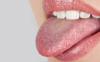Почему язык обложен белым налетом и что с этим делать
