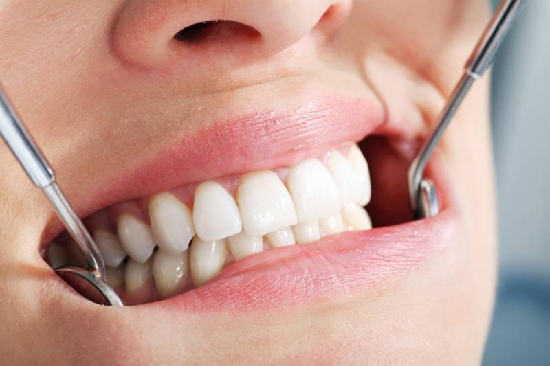 Несъемные зубные протезы: виды и особенности протезирования
