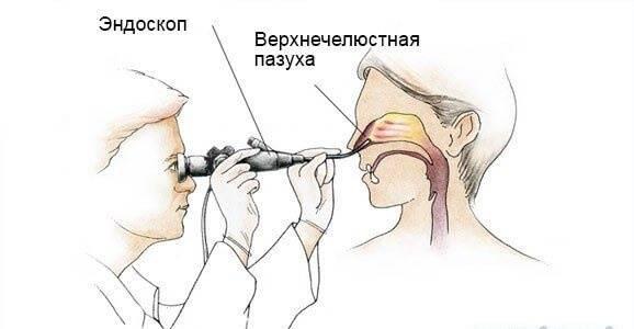 Синускопия