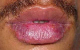 Люпус-хейлит на губах