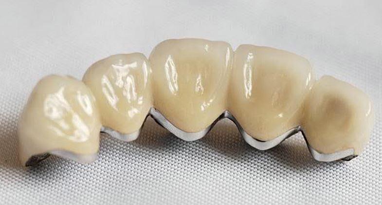 Что влияет на изменение цвета зуба, как выбрать цвет зубов по шкале Вита