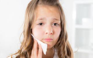 Болит челюсть у ребенка