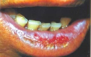 Заболевание Абразивный преканцерозный хейлит Манганотти