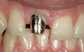 Штифт в переднем зубе