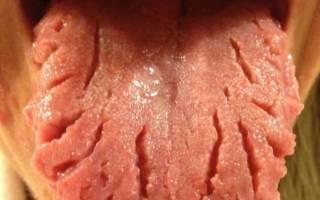Складчатый глоссит