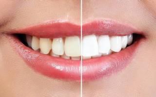 Разница в цвете зубов