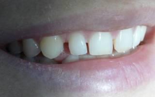 Пространство между зубами