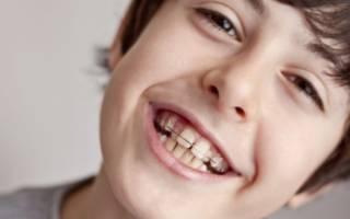 Кривые зубы у мальчика