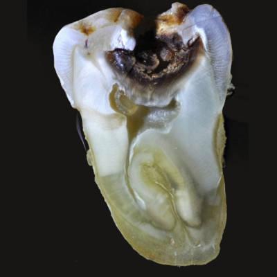 Разрушенный зуб