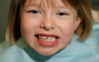 Кривые зубы у девочки