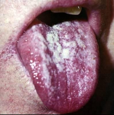 Хроническая гиперпластическая молочница во рту