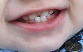 Неправильный прикус молочные зубы