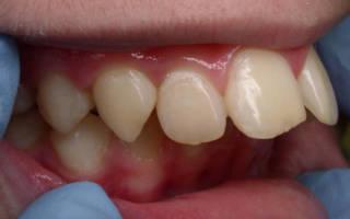 Зубы упираются в небо
