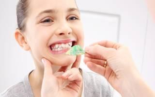 Девочка у ортодонта