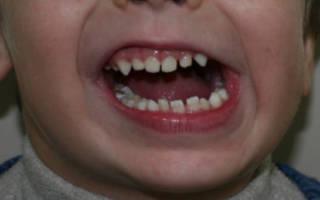Смещение детской челюсти