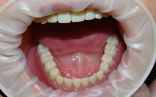 Протез нижней челюсти