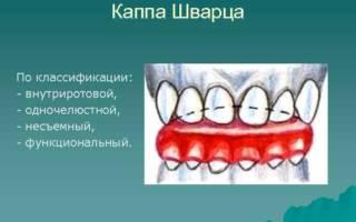 Ортодонтическая каппа Шварца